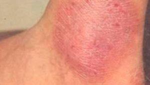 Ursachen von Neurodermitis